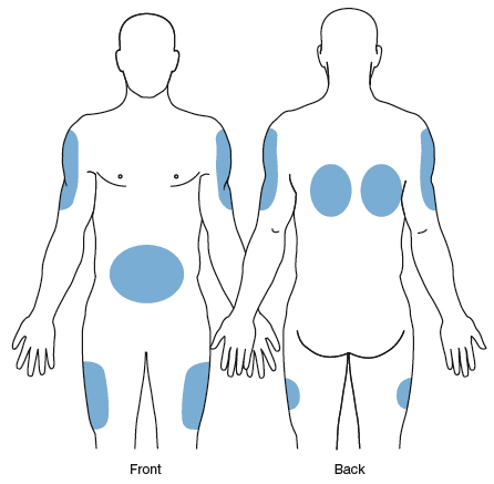 subcutaneous injection sites