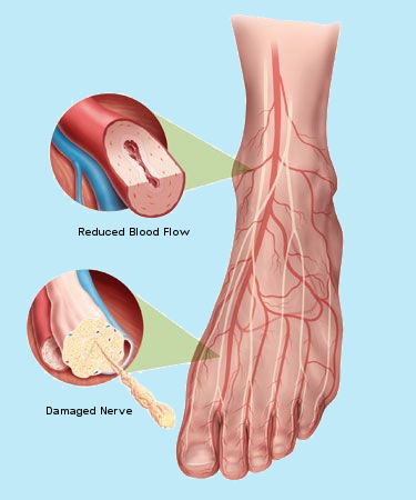 Foot Reduced Blood Flow 2. damaged nerve