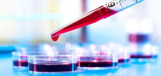 B12 deficiency signs and symptoms - identify deficiencies
