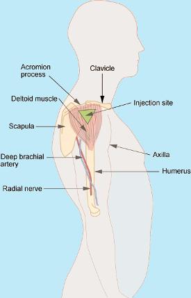 intrumuscular injection location in shoulder
