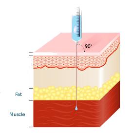 intramusclar injection cut away showing layers