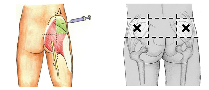 How to Perform an Intramuscular Injection of Vitamin B12