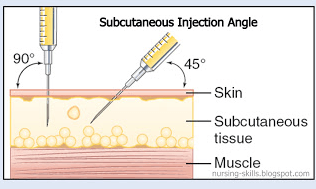 subcutaneous injection angles and location